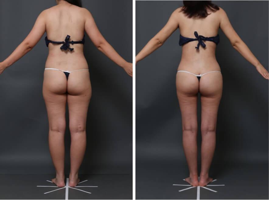 太もも、腰の脂肪吸引症例
