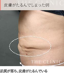 お腹の脂肪吸引 失敗例3 皮膚がたるむ