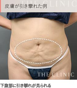 お腹の脂肪吸引 失敗例5 引き攣れ