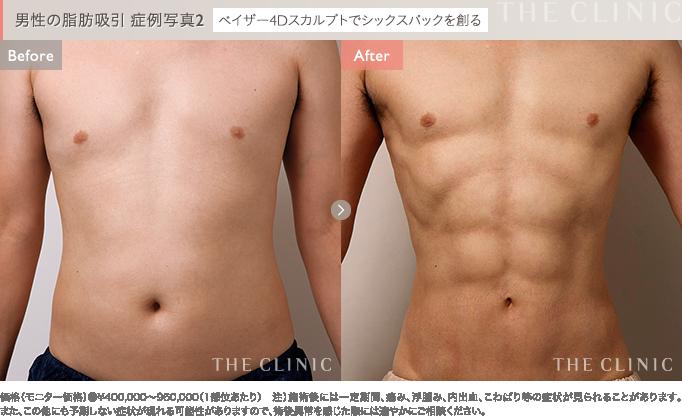 男性のお腹のベイザー4D脂肪吸引 症例写真2