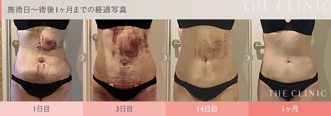 お腹の脂肪吸引の術後経過写真