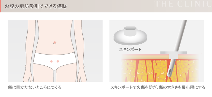 お腹の脂肪吸引の傷跡