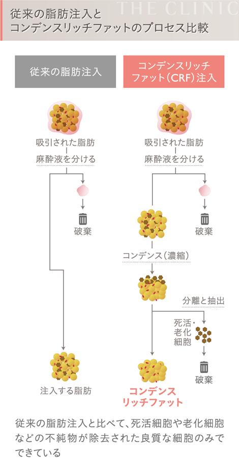 従来の脂肪注入とコンデンスリッチファット(CRF)注入の比較