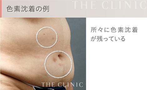 お腹の脂肪吸引 失敗例4 色素沈着