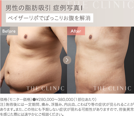 男性のお腹の脂肪吸引 症例写真1