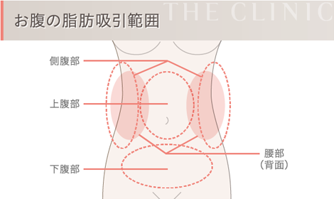 お腹の脂肪吸引範囲