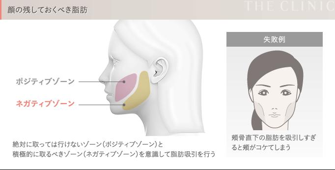 顔の脂肪吸引 残しておくべき脂肪