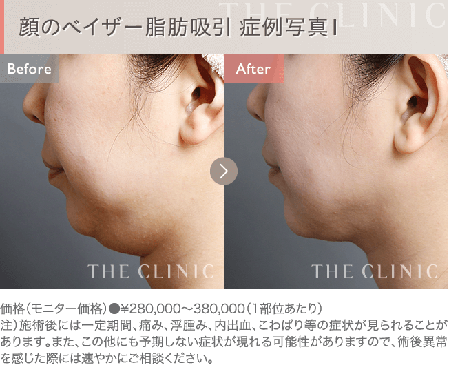 顔の脂肪吸引 症例写真1
