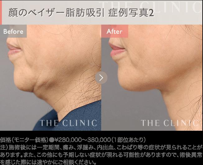 顔の脂肪吸引 症例写真2