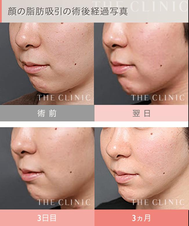 顔の脂肪吸引の術後経過写真