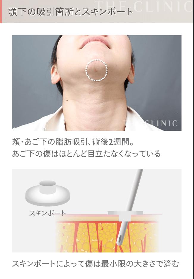 顔の脂肪吸引の傷跡