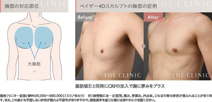 ベイザー4D脂肪吸引 胸部の症例写真