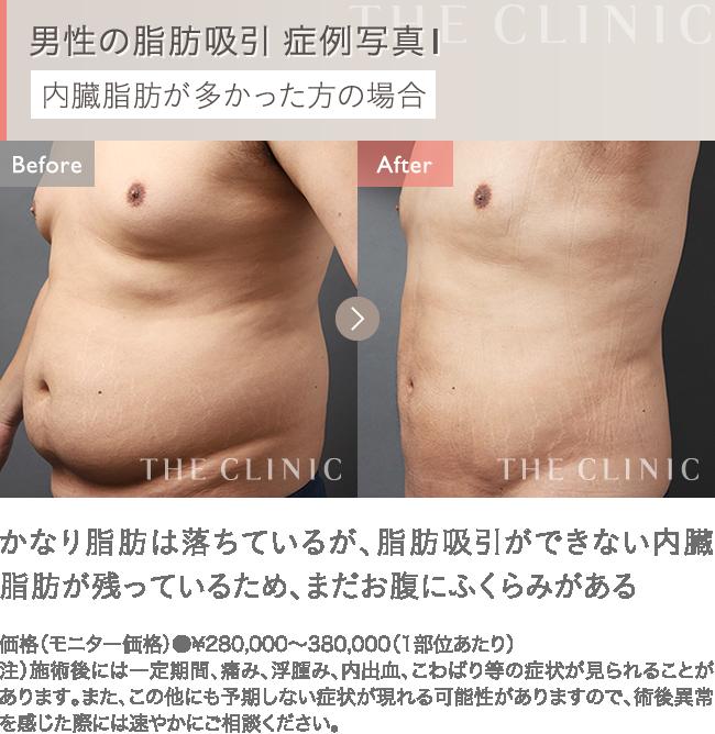 男性の脂肪吸引 症例写真1