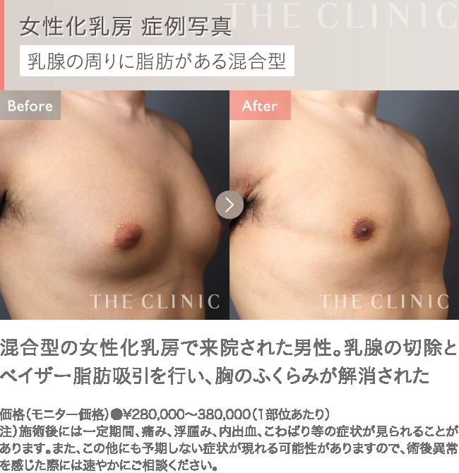 女性化乳房の症例写真1