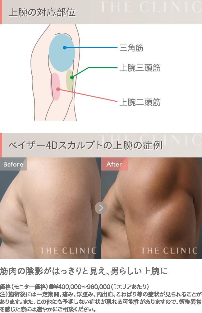 ベイザー4D脂肪吸引 上腕の症例写真