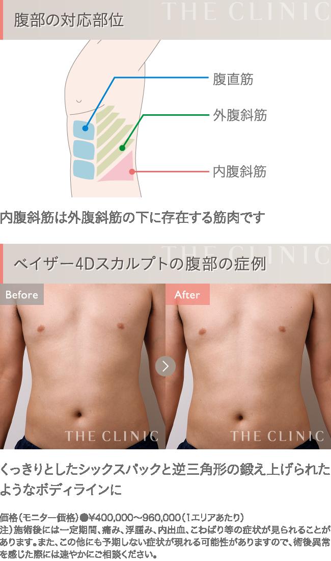 ベイザー4D脂肪吸引 お腹の症例写真