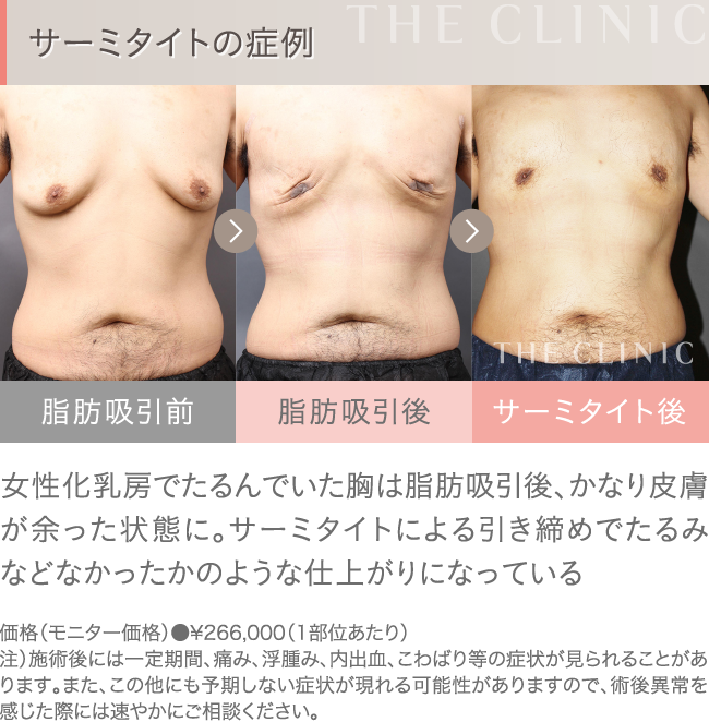 サーミタイトの症例写真(男性の胸部)