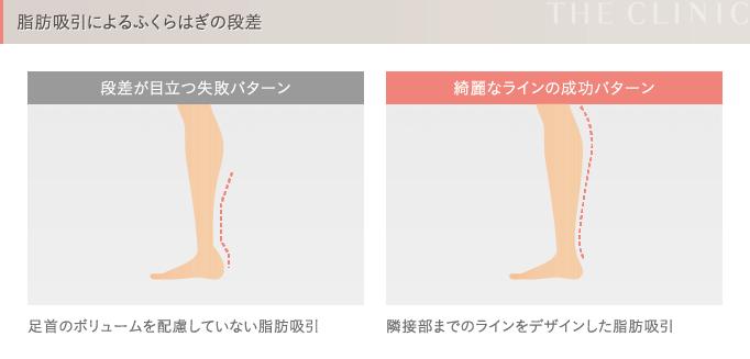 脂肪吸引の失敗2 段差
