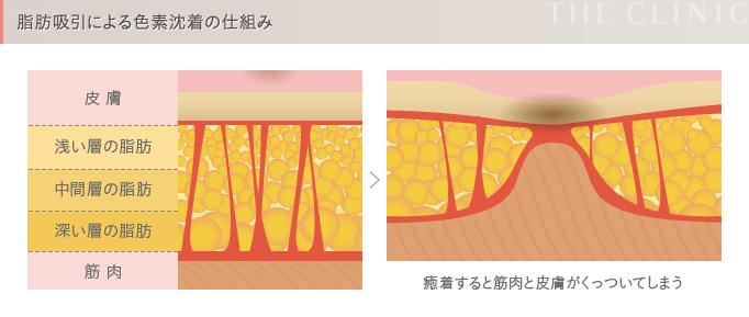 脂肪吸引の失敗4 色素沈着