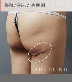 太ももの脂肪吸引 失敗例6 傷跡が残る