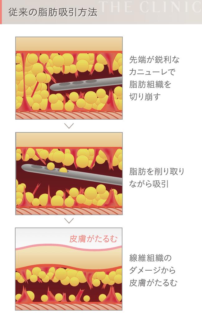 陰圧式脂肪吸引のメカニズム