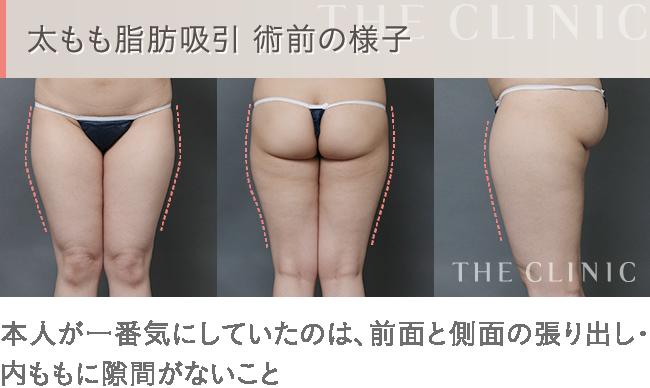 太ももの脂肪吸引 施術前