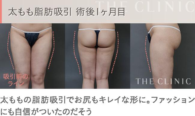 太ももの脂肪吸引 術後1ヵ月目