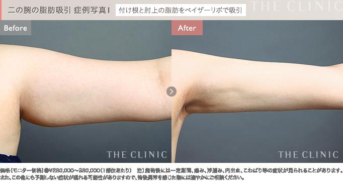 二の腕の脂肪吸引 症例写真1