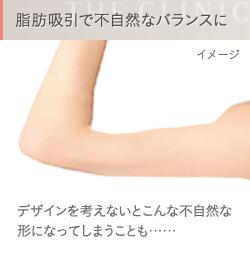 二の腕の脂肪吸引 失敗例1 不自然なバランス