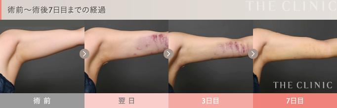 二の腕の脂肪吸引 術後経過写真