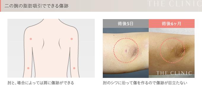 二の腕の脂肪吸引の傷跡
