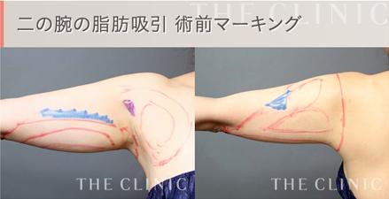 二の腕の脂肪吸引 術前4Dマーキング1
