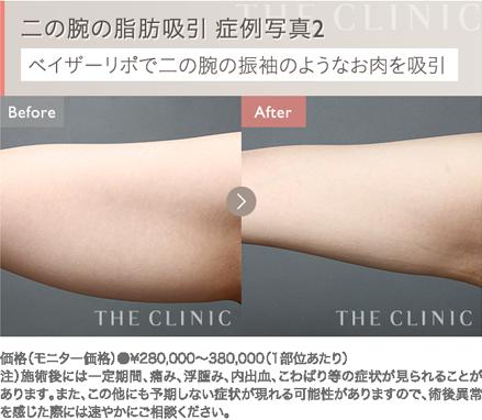 二の腕の脂肪吸引 症例写真2