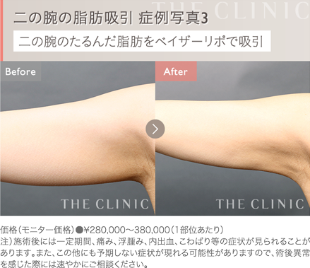 二の腕の脂肪吸引 症例写真3