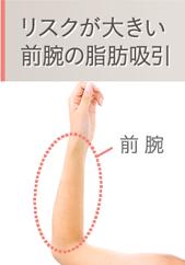 リスクが大きい前腕の脂肪吸引