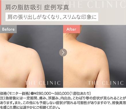 肩の脂肪吸引 症例写真