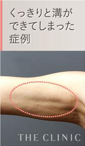 二の腕の脂肪吸引 失敗例3 溝ができる