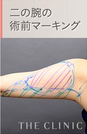 二の腕の脂肪吸引 術前4Dマーキング2