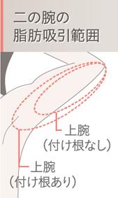 二の腕の脂肪吸引範囲