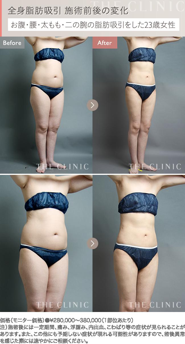 全身の脂肪吸引 症例写真1