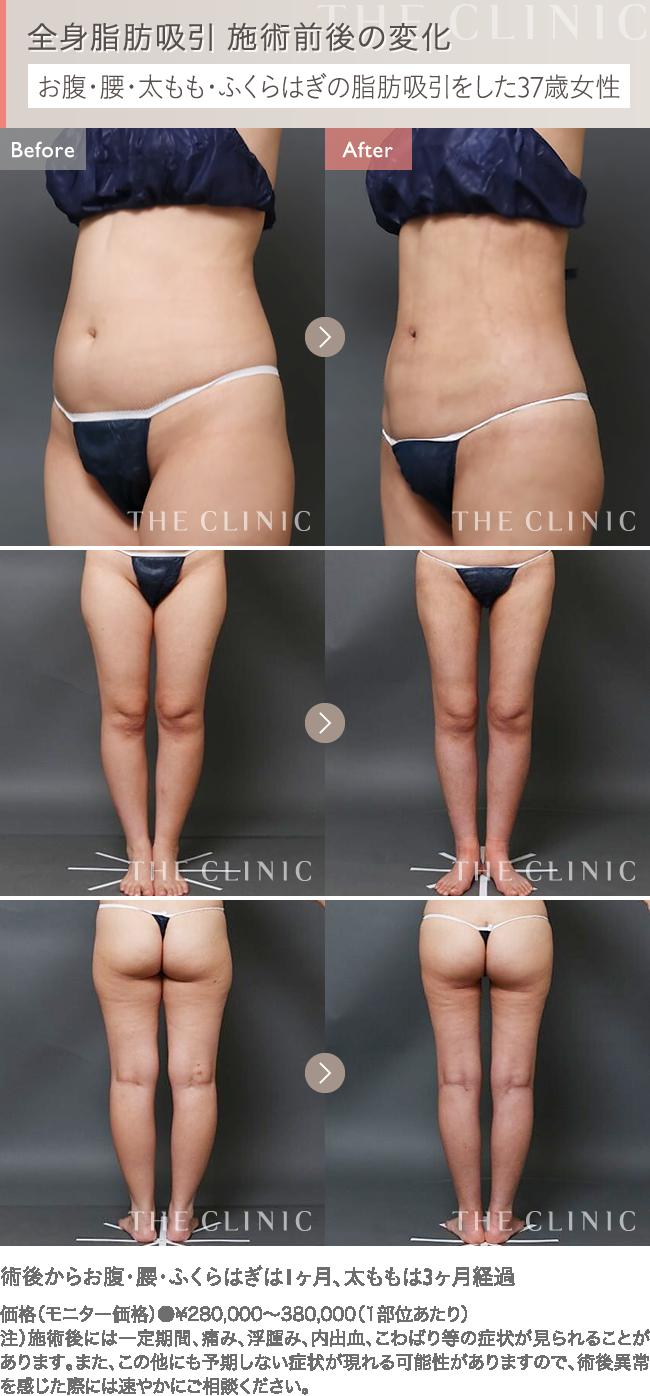全身の脂肪吸引 症例写真2