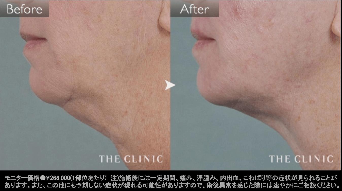 顎のたるみ治療(サーミタイト)の症例写真