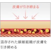 ベイザー脂肪吸引のタイトニング効果